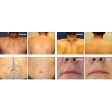 Teach you how to distinguish 808 hair removal instrument: micro channel, macro channel, no channel