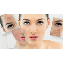 Does Intense Pulsed Light Make Skin Thin And Sensitive?