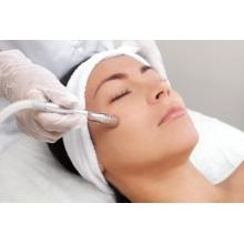 How Microdermabrasion works?