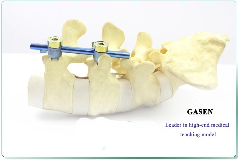 Lumbar spine model3