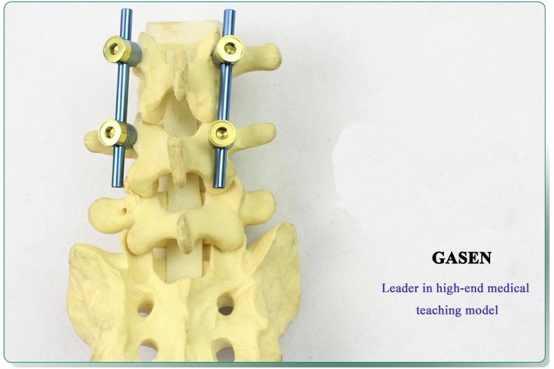 Lumbar spine model4