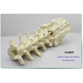 HUMAN BONE SIMULATE HUMAN LUMBAR SPINE MODELS-GASEN-FZG005