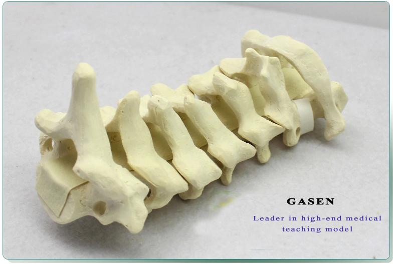 Cervical Vertebra Model15