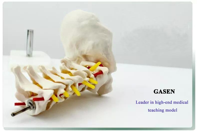 Cervical carotid artery model2
