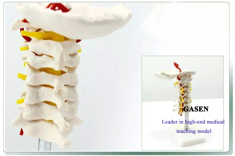 Cervical carotid artery model3