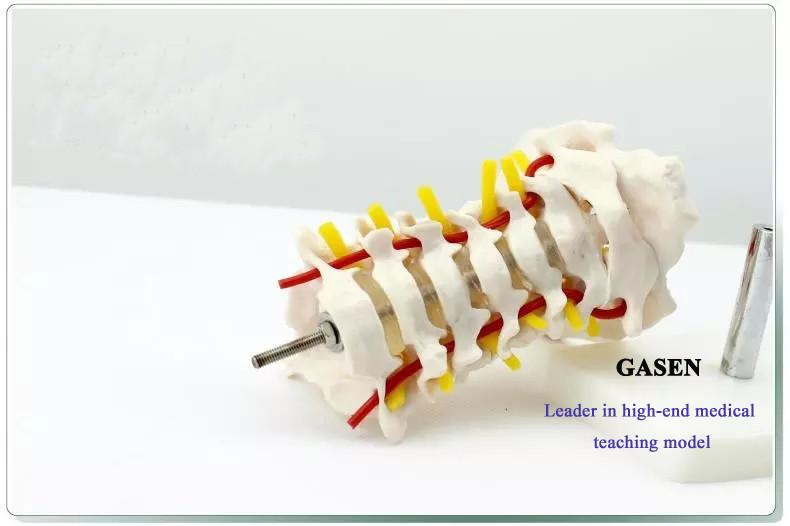 Cervical carotid artery model4