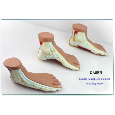 HIGH IMITATION NORMAL FOOT ARCHED FEET FLAT FEET HIGH ARCHES  FOOT JOINT CUSTOMIZABLE MODEL SKELETON MEDICAL MATRIX FOOT MODEL-GASEN-GL011