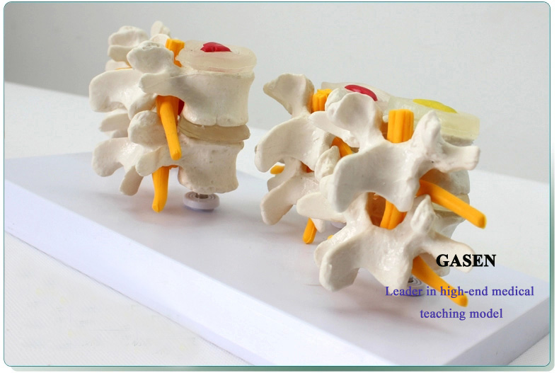 Lumbar disease model5