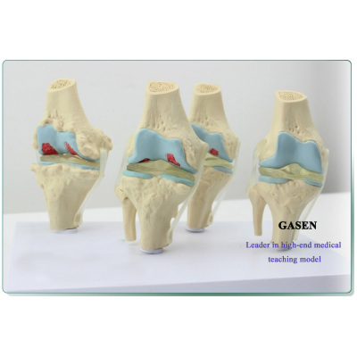 HUMAN SKELETON MODEL HUMAN PATHOLOGY KNEE JOINT MODEL-GASEN-GL038