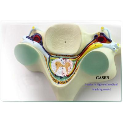 FIFTH CERVICAL SPINAL CORD SPINAL NERVE ENLARGEMENT MODEL ANATOMY OF THE SPINAL CORD TRANSECTION CERVICAL VERTEBRA MODEL GASEN-GL047