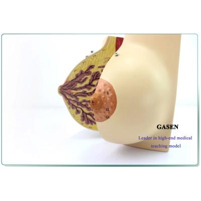 HUMAN MEDICAL REPRODUCTIVE MODEL FEMALE BREAST MODEL-GASEN-SZ007