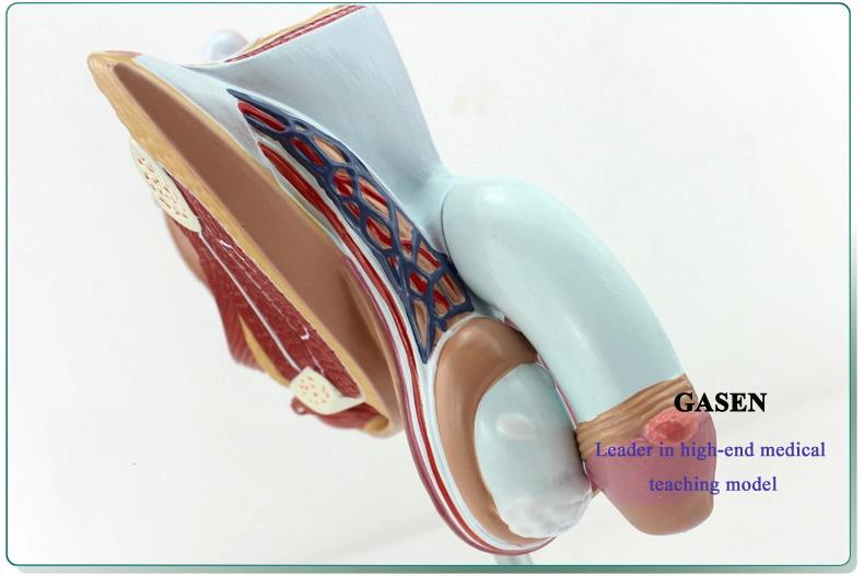 Male reproductive pathology05
