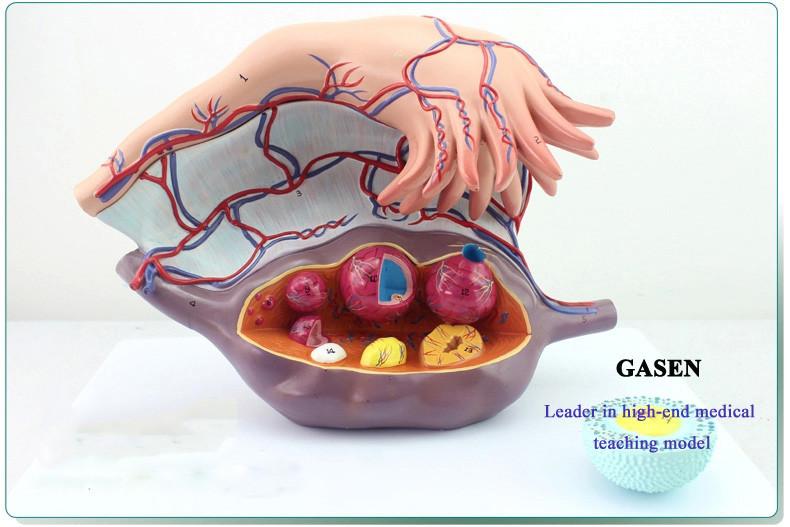 Ovarian uterine12