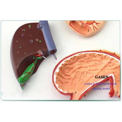 LIVER AND PANCREATIC CYSTIC STRUCTURE MODEL OF MEDICAL ANATOMICAL DIGESTIVE STOMACH HEPATOBILIARY GASTROINTESTINAL GASEN-XH003