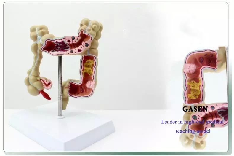 colon lesion3