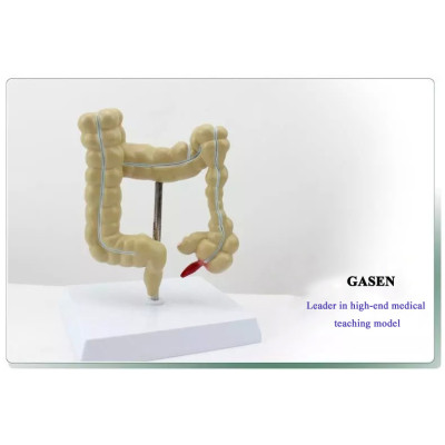 ANORECTAL GASTROENTEROLOGY MEDICAL ANATOMICAL MODEL HUMAN COLONIC LESION MODEL-GASEN-XH007