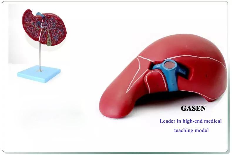 hepatocystic3