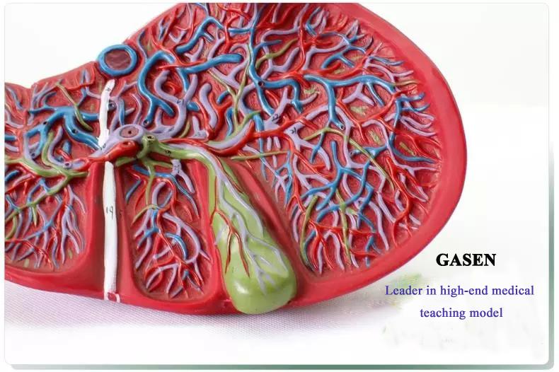 hepatocystic6