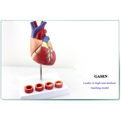 1: 1 MEDICAL MODEL OF THE HUMAN HEART MODEL OF ATHEROSCLEROSIS THROMBOSIS CARDIOLOGY TEACHING ARTERIOSCLEROSIS MODEL -GASEN-XZ006