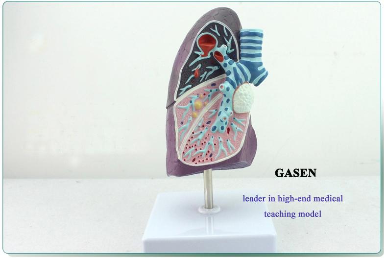 Lung pathology1