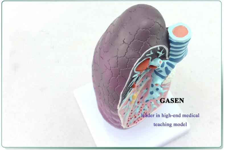Lung pathology2