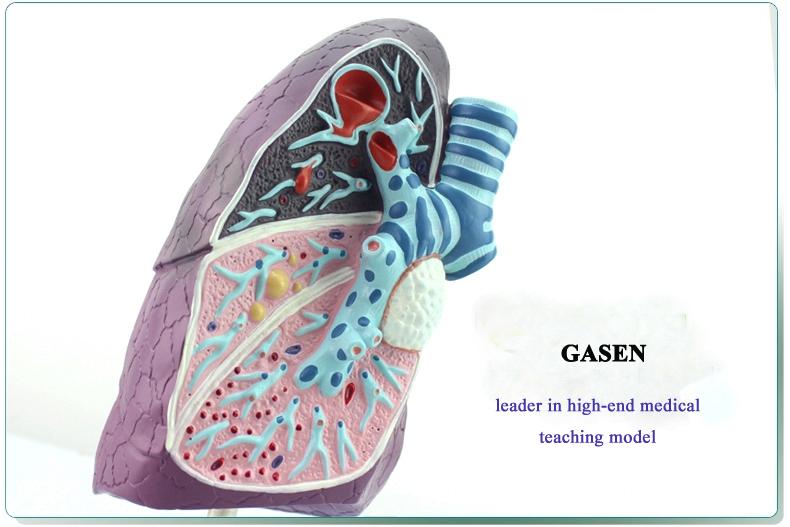 Lung pathology3
