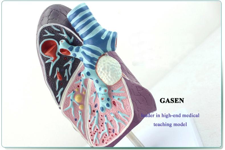 Lung pathology4