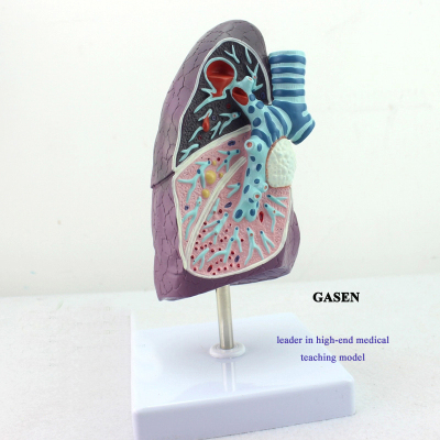 MEDICAL MODEL OF THE HUMAN LUNG  SMOKERS TUBERCULOSIS MODEL PNEUMONIA MODEL THORACIC SURGERY MODEL MODEL OF RESPIRATORY LUNG PATHOLOGICAL ANATOMY MODEL-GASEN-HX004
