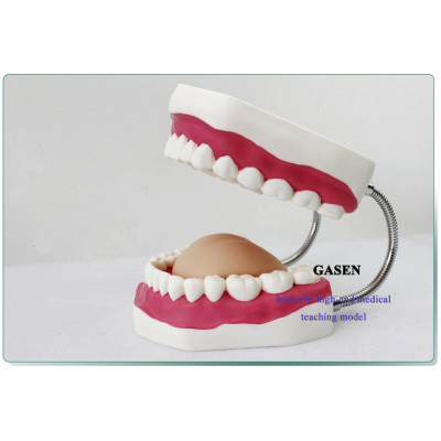 6 TIMES LARGER ORAL CARE MODEL BRUSHING GUIDANCE MODEL TOOTH MODEL ORAL TEACHING MODEL-GASEN-KQ009