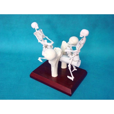 A COMBINATION OF HIGH-QUALITY PVC SEESAW HUMAN SKELETON BONE SURGERY SIMULATION -GASEN-RZFZG002