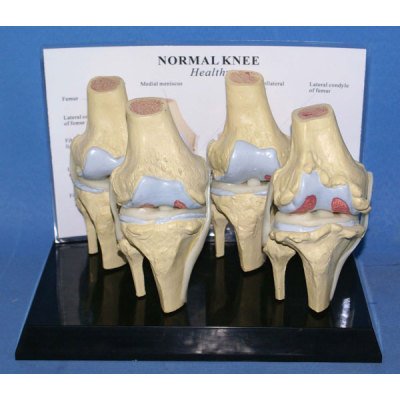 HUMAN KNEE JOINTS PATHOLOGIES MODEL ENVIRONMENTAL PVC MATERIAL MEDICAL TEACHING HUMAN SKELETON MODEL BONE SURGERY PRACTICE COMPARE KNEE LESIONS -GASEN-RZGL013