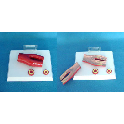 ENVIRONMENTAL PVC MATERIAL MEDICAL ANATOMICAL TORSO ANATOMICAL MODEL STRUCTURE HUMAN ORGAN SYSTEM INTERNAL ORGANS LARGE HEART (7)  DESKTOP PATHOLOGICAL VESSEL MODEL -GASEN-RZJP004
