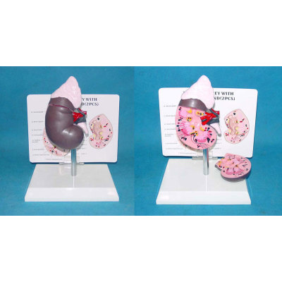 ENVIRONMENTAL PVC MATERIAL HUMAN REPRODUCTIVE SYSTEM MODEL HUMAN REPRODUCTIVE SYSTEM MODEL MEDICAL ANATOMICAL HEALTHY KIDNEY MODEL -GASEN-RZMN025