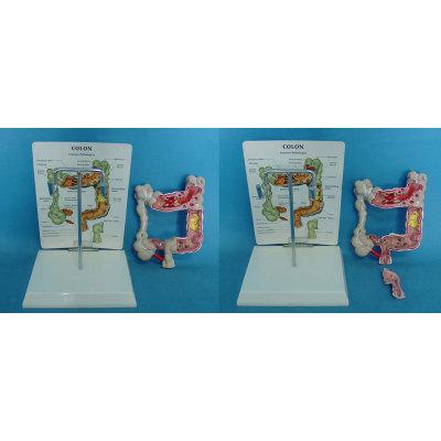 ENVIRONMENTAL PVC MATERIAL ORGAN ANATOMICAL MODEL OF HUMAN LIVER MEDICAL TEACHING COLONIC LESIONS MODEL -GASEN-RZRTXH008
