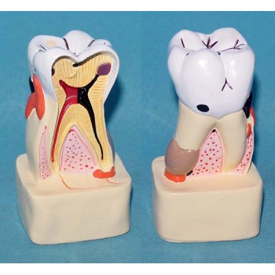 ENVIRONMENTAL PVC MATERIAL ORAL DENTAL TEACHING MODEL COMPREHENSIVE DENTAL DISEASE PATHOLOGY DECOMPOSITION -GASEN-RZKQ007