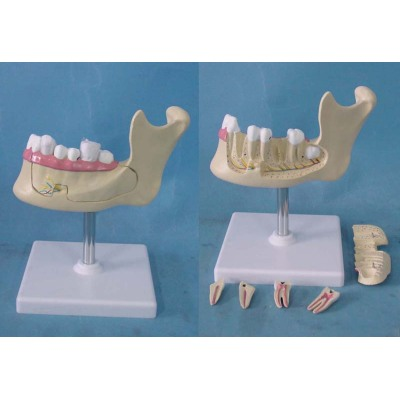 ENVIRONMENTAL PVC MATERIAL ORAL DENTAL TEACHING MODEL SMALL DENTITION WITH SEAT -GASEN-RZKQ008