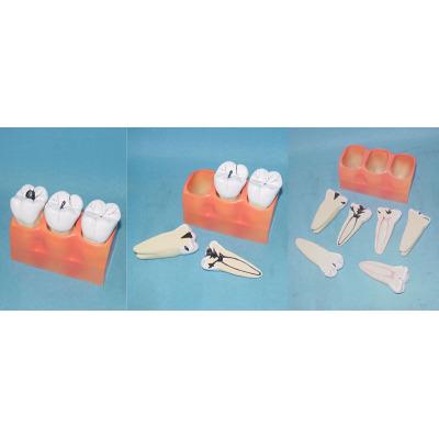 ENVIRONMENTAL PVC MATERIAL ORAL DENTAL TEACHING MODEL CARIES DECOMPOSITION MODEL -GASEN-RZKQ012