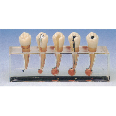 CLINICAL MODEL OF ENDODONTICS GASEN-B10015-2