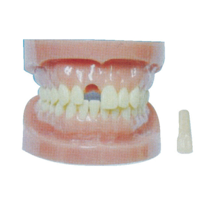 DETACHABLE TEETH MODEL WITHOUT ROOT GASEN-B10028