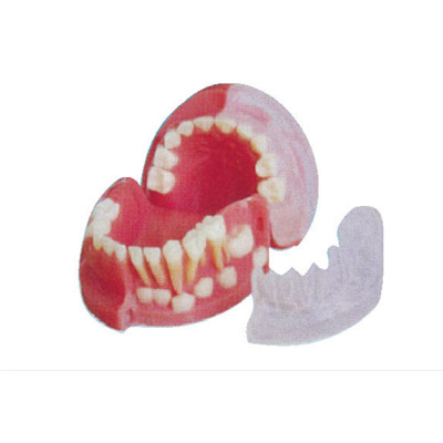THREE-YEAR-OLD PRIMARY AND PERMANENT TEETH ALTERNATING MODEL GASEN-B10030
