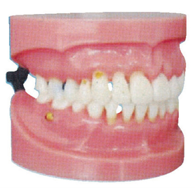 PERIODONTAL DISEASE DEMONSTRATION MODEL GASEN-B10031