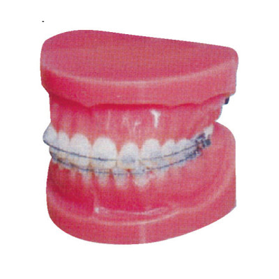 FIXED ORTHODONTIC MODEL (NORMAL) GASEN-B10036