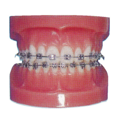 FIXED ORTHODONTIC MODEL (NORMAL) GASEN-B10037