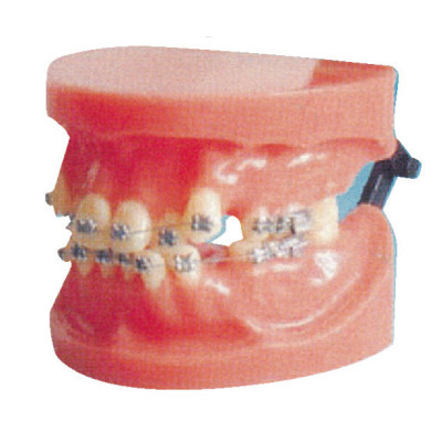 FIXED ORTHODONTIC MODEL (DISLOCATION) GASEN-B10038
