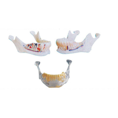 MANDIBULAR ANATOMY MODEL GASEN-B10041