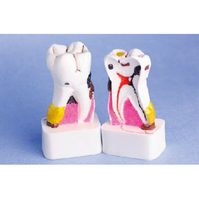 ENLARGED PATHOLOGICAL TOOTH MODEL GASEN-B10048