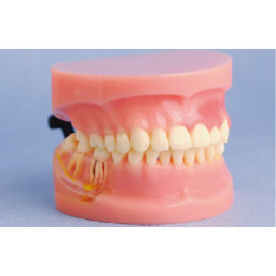 MODEL OF PERIODONTAL DISEASE GASNE-B10053
