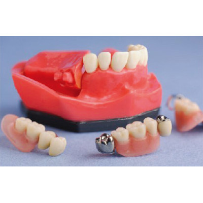 CROWN& BRIDGE DEMONSTRATION MODEL WITH IMPLANT GASEN-B10067