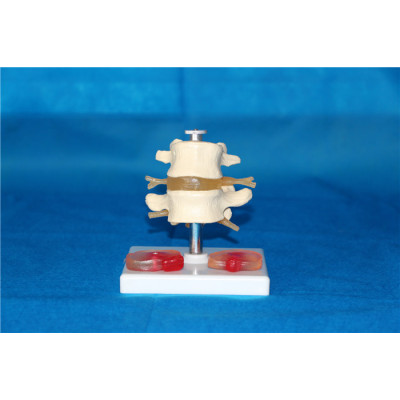 LUMBAR VERTEBRA ENVIRONMENTAL PVC MATERIAL MEDICAL TEACHING HUMAN SKELETON MODEL BONE SURGERY PRACTICE WITH THREE LARGE NATURAL LUMBAR DISC DISEASE THAN -GASEN-RZGL023