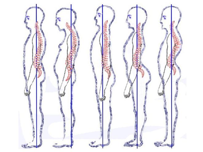 Improve Posture and Balance